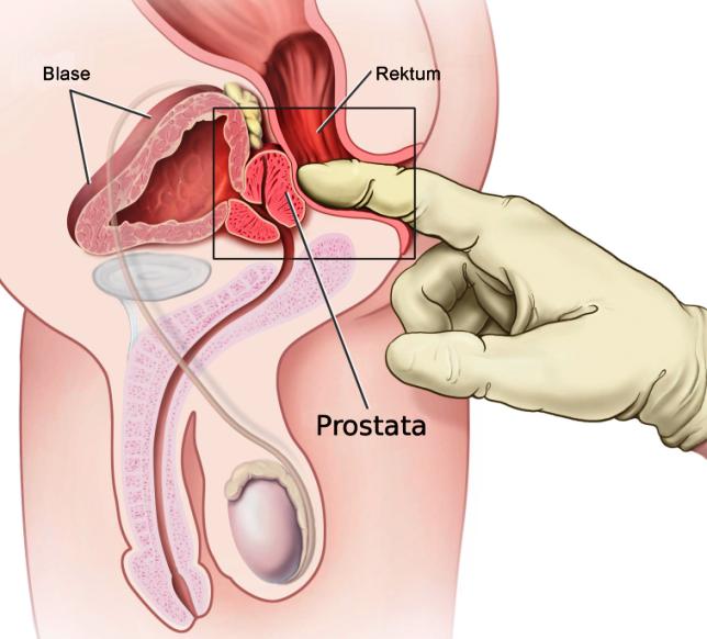 prostata uchun mashqlar